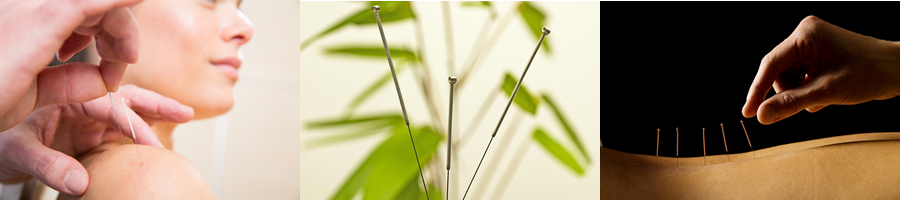 3 acupuncture photos banner